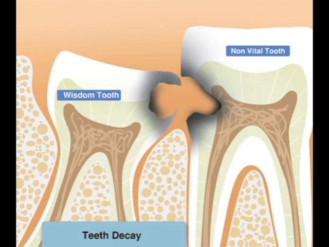 how to clean extracted teeth