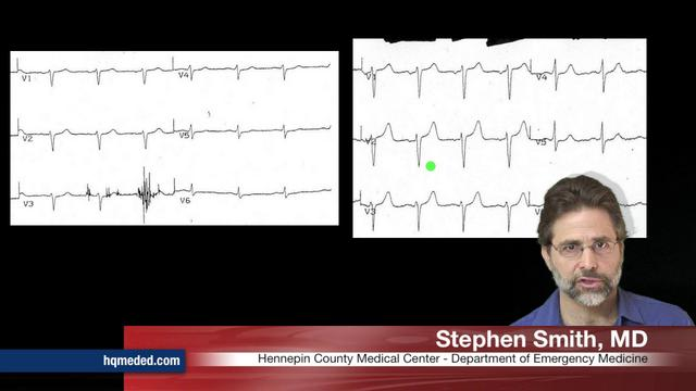 LAD occlusion diagnosed by serial ECGs