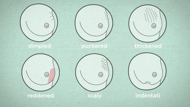 How to recognize breast cancer symptoms on vimeo