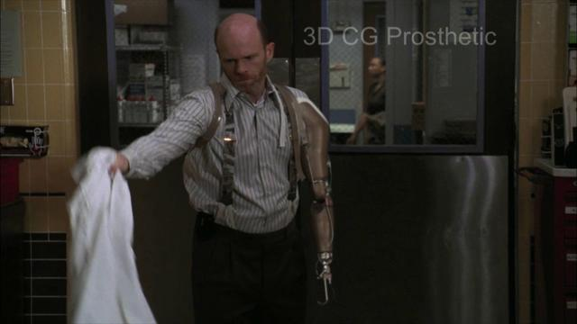 CG Prosthetics Demo