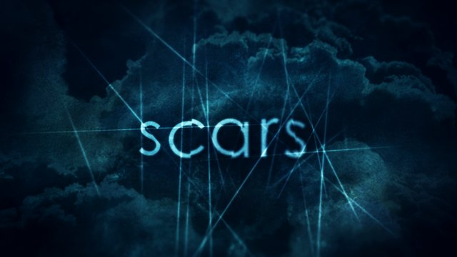 Scars | Dan Stevers