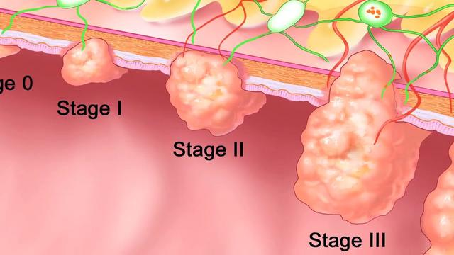 Stage 1 Colon Cancer Pictures