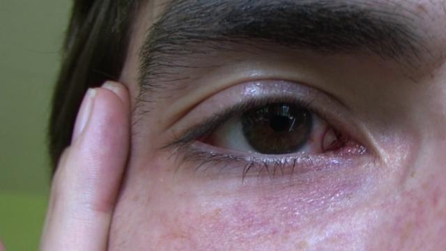Eyeball Tattoo On Vimeo