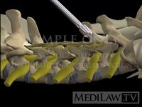 Cervical Spine Laminectomy + Lateral Mass Screw Fusion neurosurgeon animations