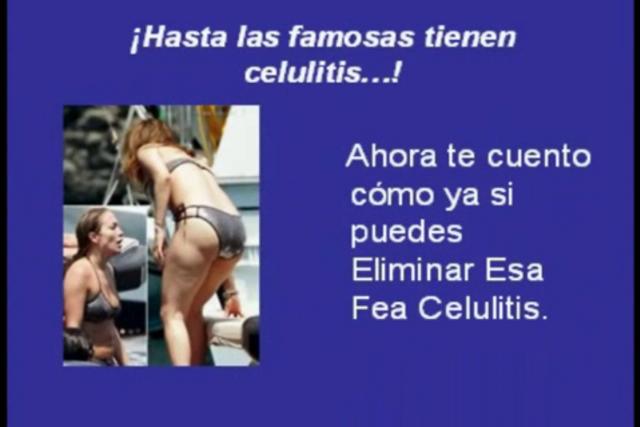 Famosas Con Celulitis   Como Eliminar La Celulitis