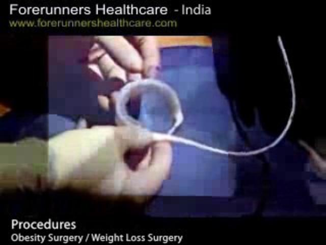Get desired and less cost weight loss with bariatric surgery at Kerela in India. on Vimeo