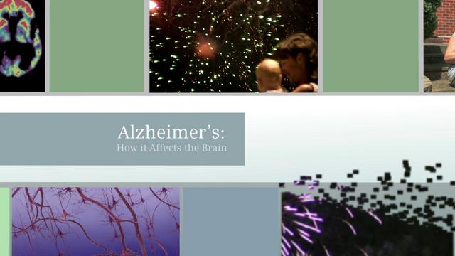 Alzheimers - How it Affects the Brain