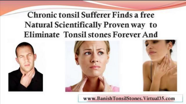Treatment For Tonsillitis - Tonsillectomy In Adults
