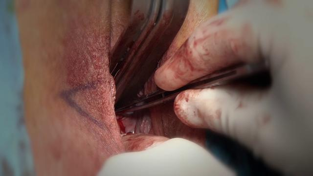 Surgery Pussy 82