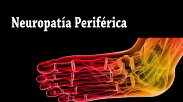 Neuropatía Periférica - Podólogo en NYC Manhattan y White