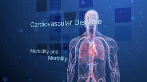 Cardiovascular disease burden myocardial infarction stroke motion graphics morbidity mortality risk factors
