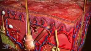 Drug delivery spray dermatology plaque lesion scalp hair sodium borosulfate isopropyl myristate  clobetasol prorpionate epidermis anti-inflammatory anti-proliferative immunosuppressive vasoconstrictive