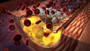 T2DM Diabetes cardiovascular macrovascular atherosclerosis dyslipidemia hypertension free fatty acids FFA glucotoxicity hyperglycemia lipotoxicity insulin resistance oxidative stress glycation free radicals lipid lipoprotein peroxidation foam cell insulin resistance endothelial dysfunction nitric oxide eNOS  platelet aggregation inflammatory growth factors proliferation migration smooth muscle cells thrombosis pro-thrombotic myocardial infarction