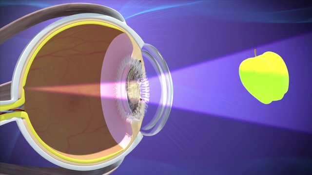 Healthpoints 09 - Cataracts