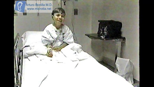 Microtia - Congenital Ear Deformity Institute  Dr. Arturo Bonilla 03