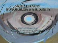 Nonphaco sutureless surgery - Tilganga