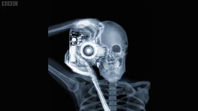 Nick Veasey X Rays Victoria Albert Museum S Fashion Collection