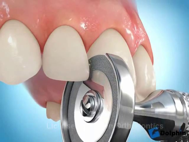 Reduccion de los triangulos o espacios negros entre los dientes con ...