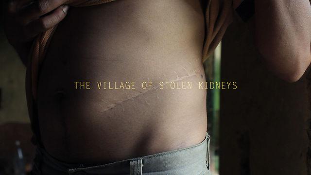 THE VILLAGE OF STOLEN KIDNEYS - [Editor's cut]