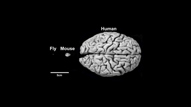 Man & Fly Brains