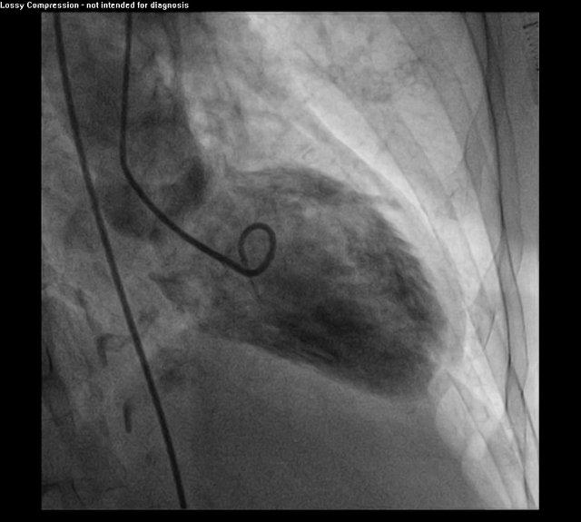 Lv >> Tako-Tsubo Cardiomyopathy - LV angio