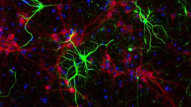 Forget-Me-Not: Amazing Brain Cell Connections