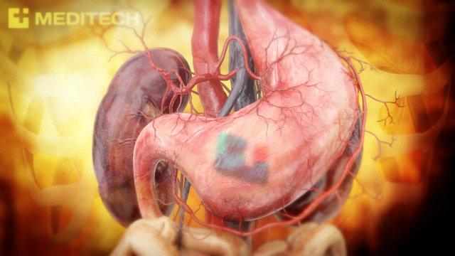 Medical Animation Reel