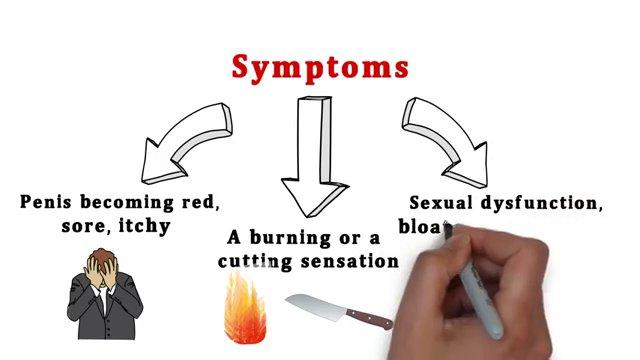 synthroid rash