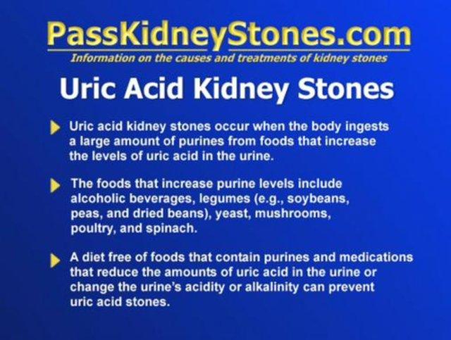 Viagra And Uric Acid Stones