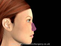 Open Rhinoplasty (Nose Job)