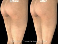 Thigh Liposuction