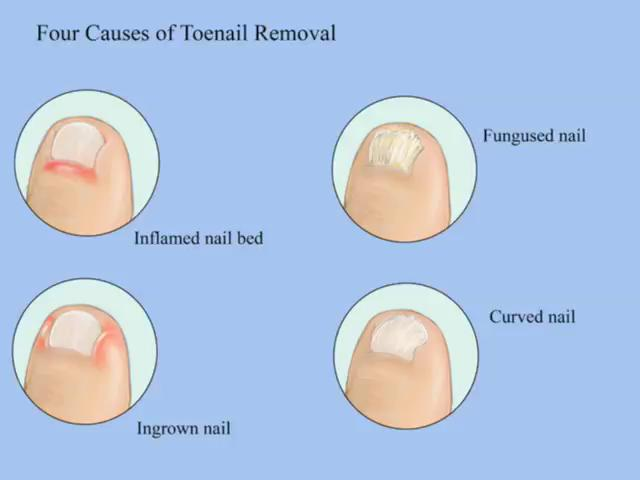 Toenail Fungus - Can Removing The Nail Save It? | SteriShoe Blog ...