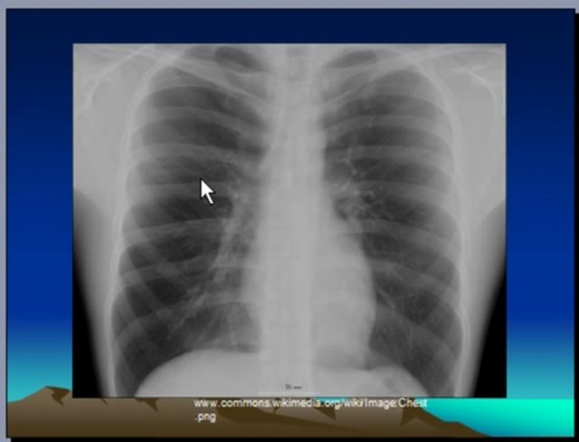 Chest xray interpretation pneumonia consolidation on vimeo