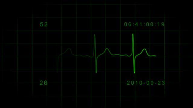 Heart Rate Monitor - EKG